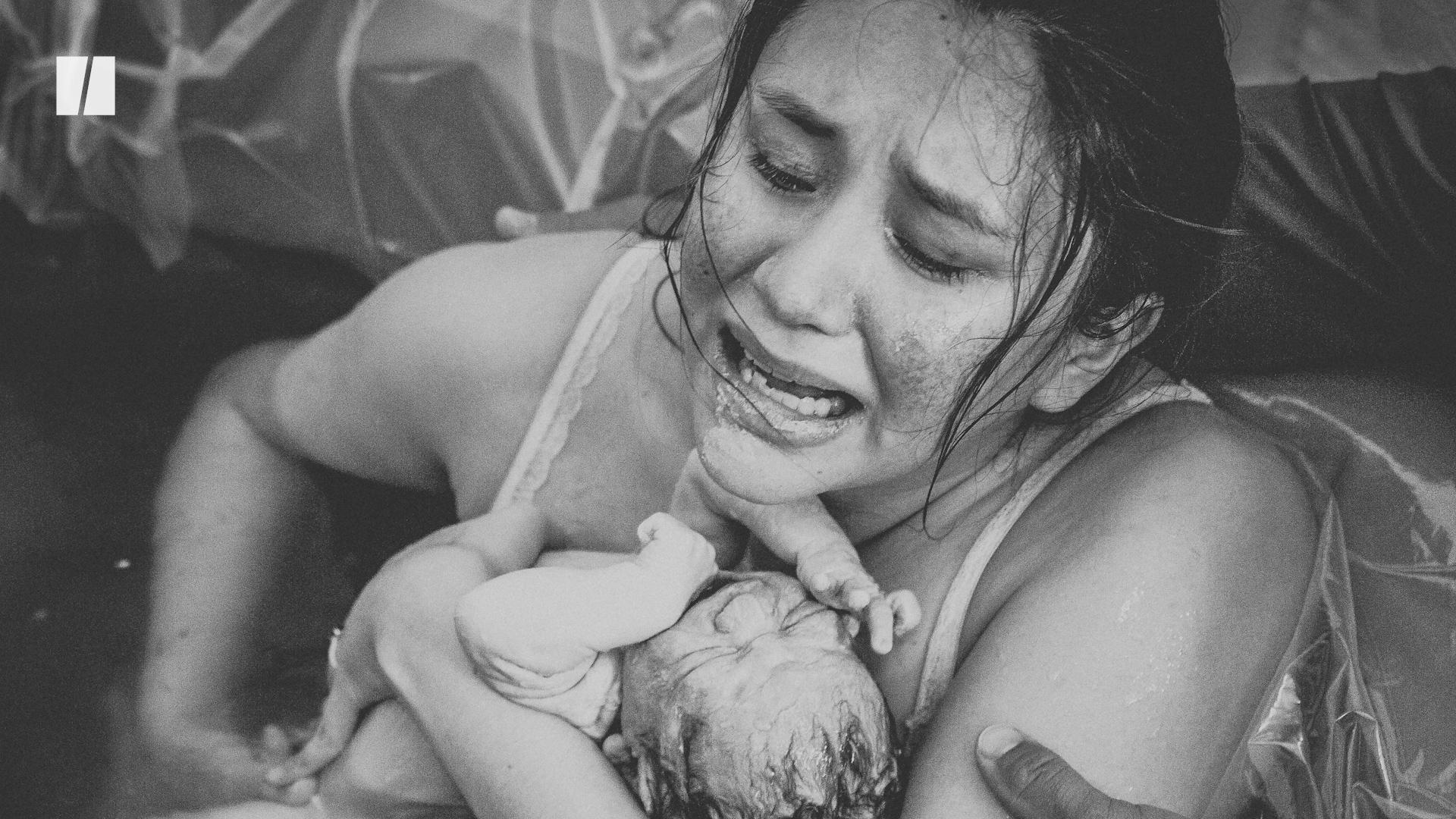'Life After Birth' Photo Exhibit Shows What Giving Birth Is Actually Like